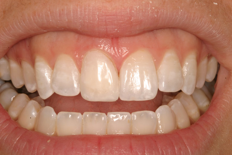 Closeup photo of Cathy smiling showing new porcelain veneer on front tooth