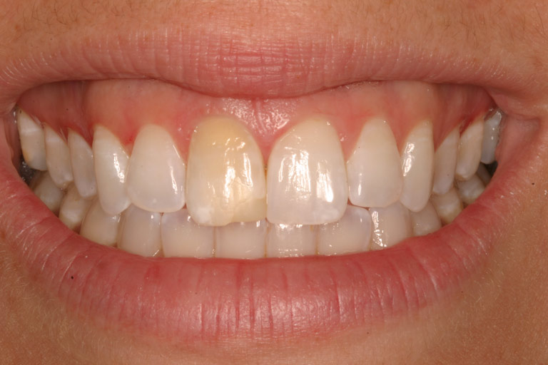 Closeup photo of Cathy smiling showing yellow front tooth before smile makeover