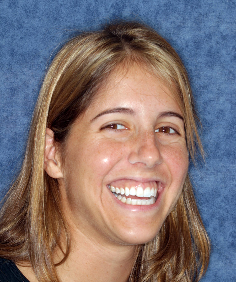 Headshot photo of Cathy smiling showing new porcelain veneer from Dr. Brooksher