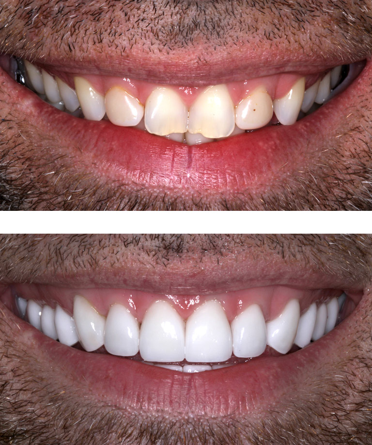 Closeup photos of Christopher smiling showing smile makeover results