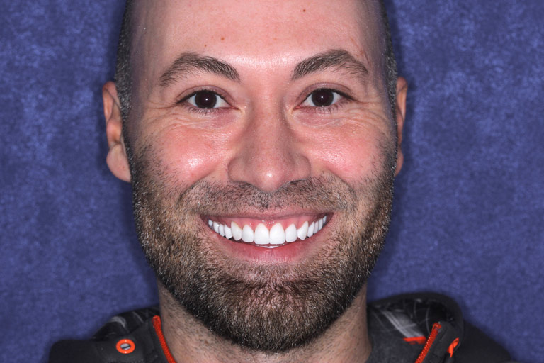 Headshot photo of Christopher smiling after smile makeover