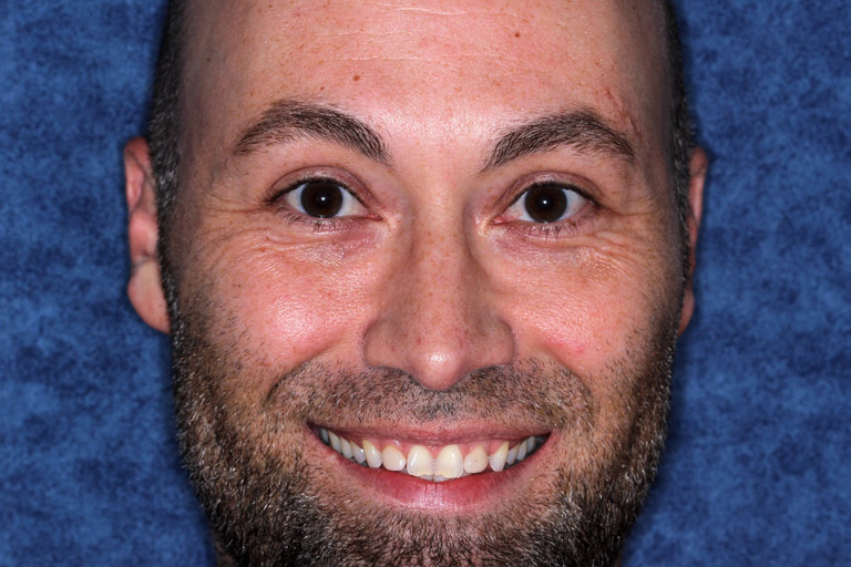Headshot photo of Christopher smiling showing discolored worn teeth before smile makeover
