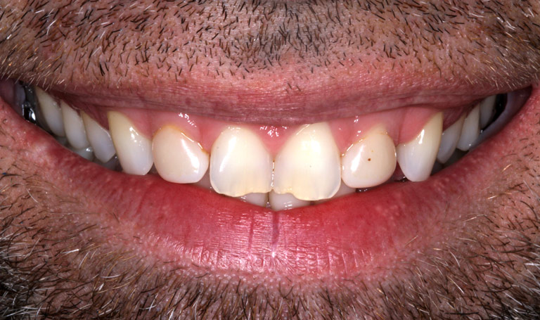 Closeup photo of Christopher smiling showing discolored worn teeth before smile makeover