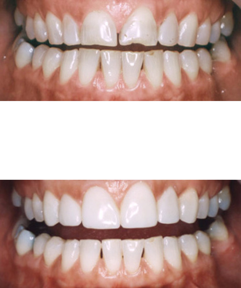 Closeup photos of Connie smiling showing direct resin veneer results