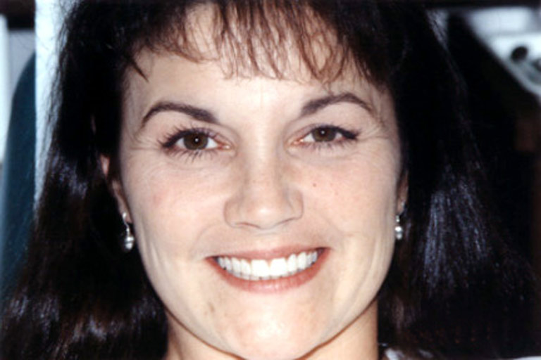 Headshot photo of Connie smiling after direct resin veneers