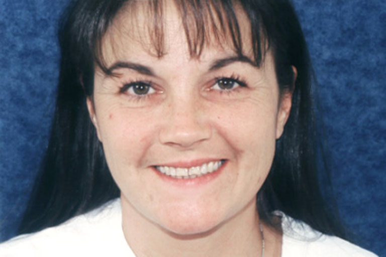 Headshot photo of Connie smiling showing discolored worn teeth before veneers