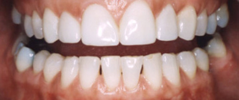 Closeup photo of Connie smiling showing her direct resin veneer results