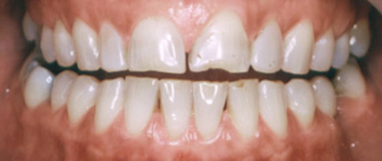 Closeup photo of Connier smiling showing worn teeth before veneers