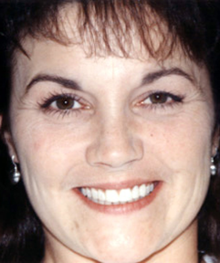 Headshot photo of Connie smiling showing direct resin veneer results from Dr. Brooksher