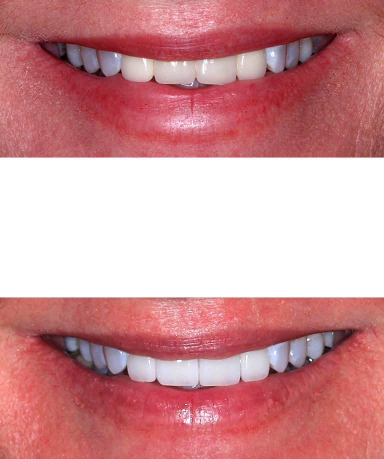 Closeup photos of Jennifer smiling showing direct smile makeover results