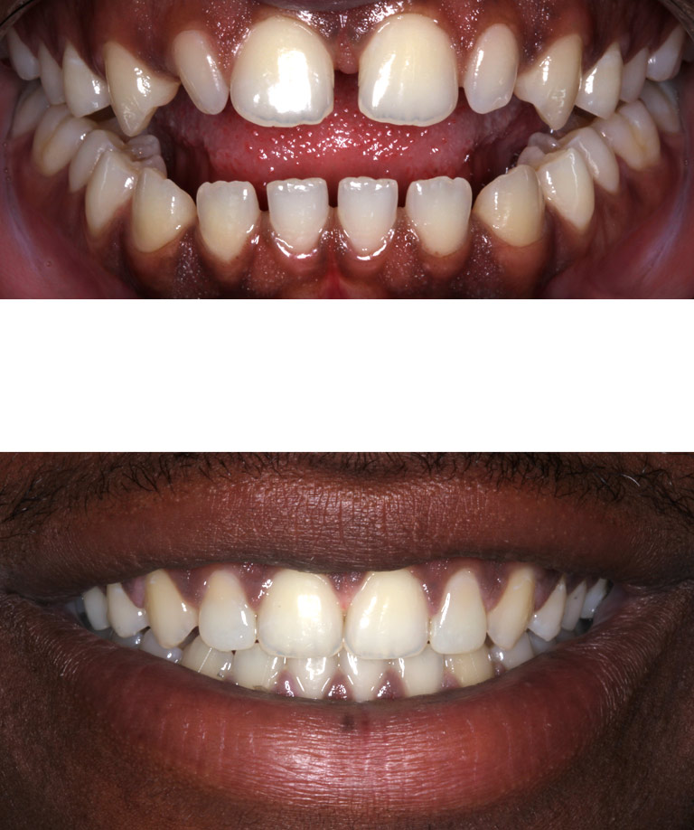 Closeup photos of Jason smiling showing direct smile makeover results