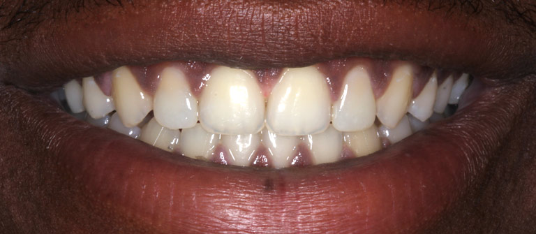 Closeup photo of Jason smiling showing her smile makeover results