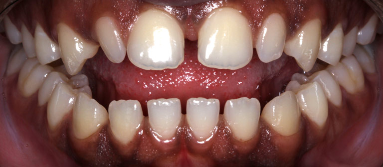 Closeup photo of Jason smiling showing spaces in teeth before smile makeover