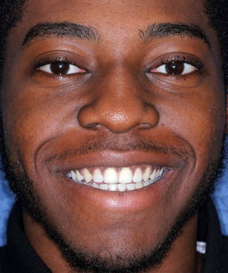Headshot photo of Jason smiling showing smile makeover results from Dr. Brooksher