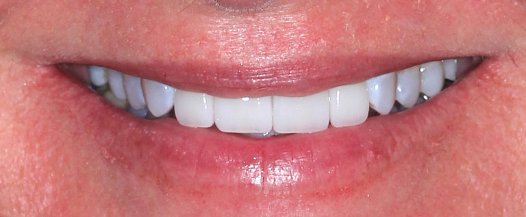 Closeup photo of Jennifer smiling showing her bridge replacement results