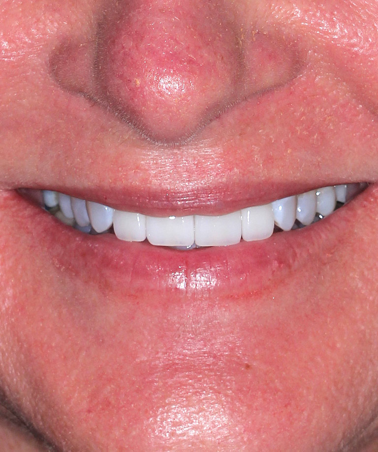 Headshot photo of Jennifer smiling showing bridge replacement results from Dr. Brooksher