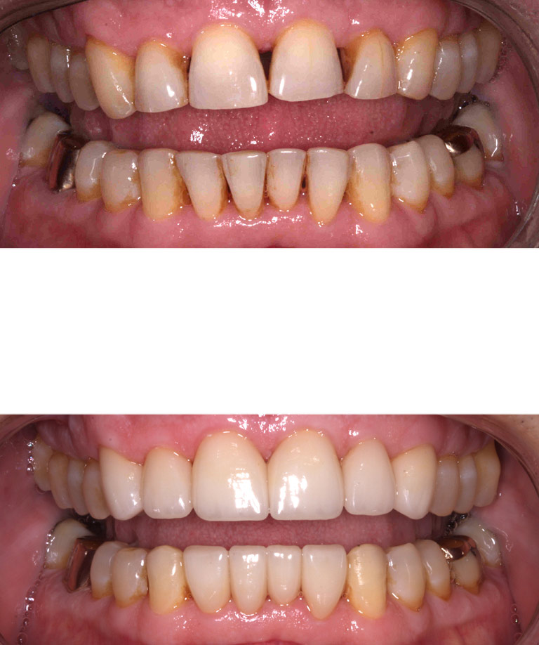 Closeup photos of Jimsmiling showing smile makeover results