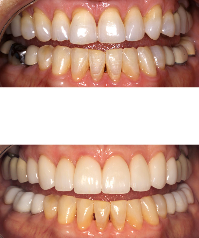 Closeup photos of Kay smiling showing smile makeover results