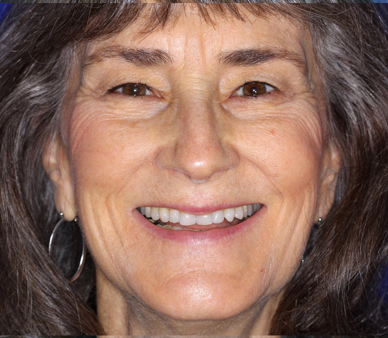 Headshot photo of Kay smiling showing worn discolored teeth before smile makeover