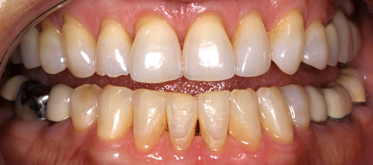 Closeup photo of Kay smiling showing worn discolored teeth before smile makeover