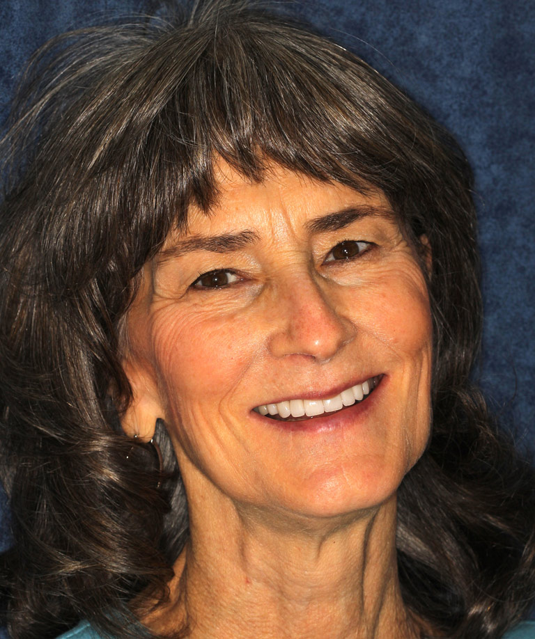 Headshot photo of Kay smiling showing smile makeover results from Dr. Brooksher