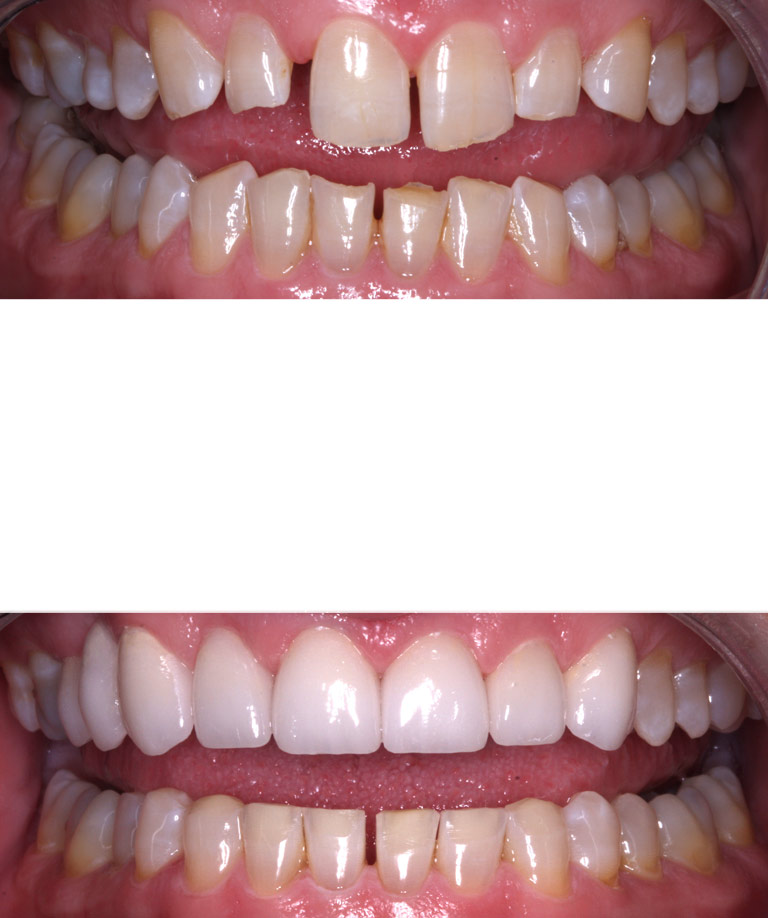 Closeup photos of Keith smiling showing smile makeover results