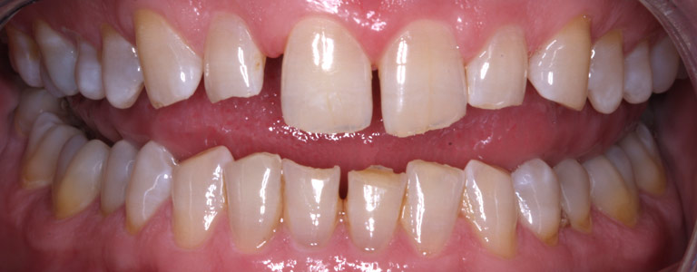 Closeup photo of Keith smiling showing gapped discolored teeth before smile makeover