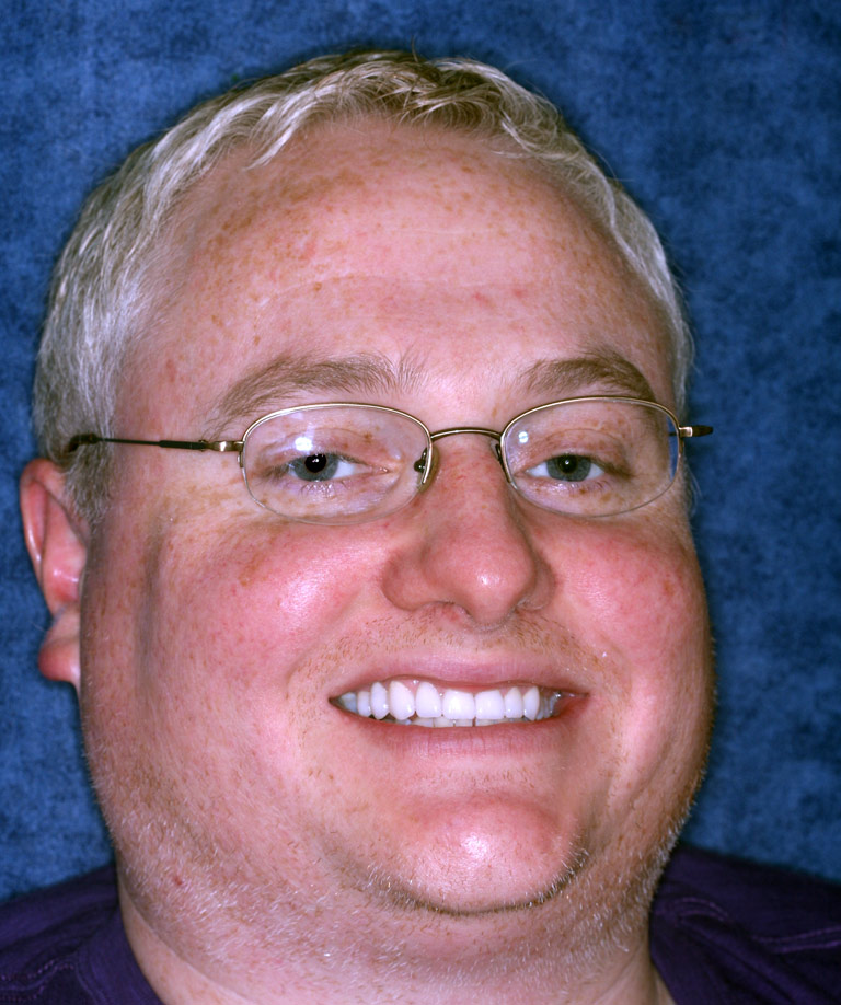 Headshot photo of Keith smiling showing smile makeover results from Dr. Brooksher