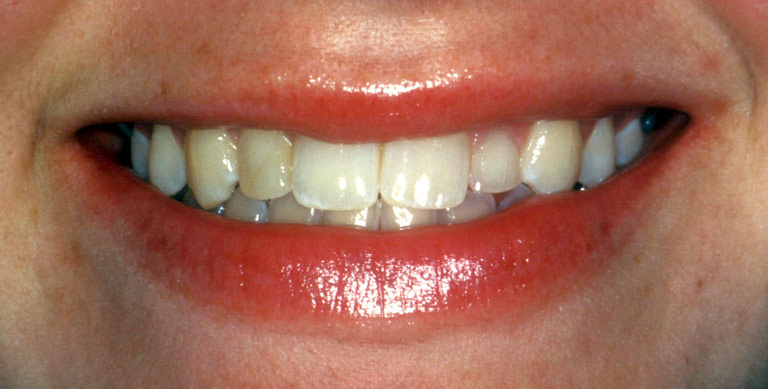 Closeup photo of Lindsay smiling showing worn discolored teeth before smile makeover