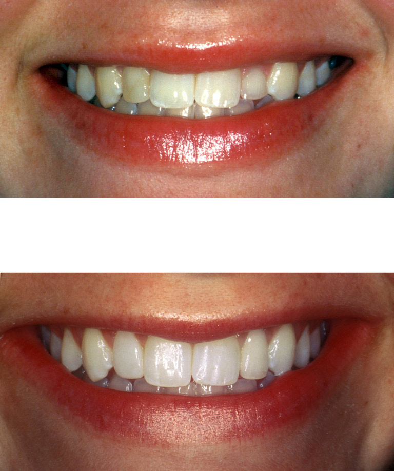 Closeup photos of Lindsay smiling showing smile makeover results