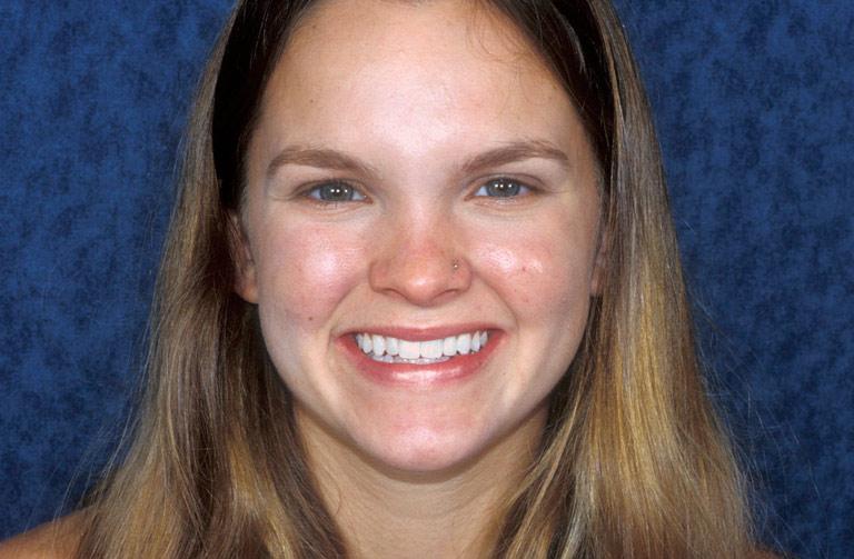 Headshot photo of Lindsay smiling after smile makeover