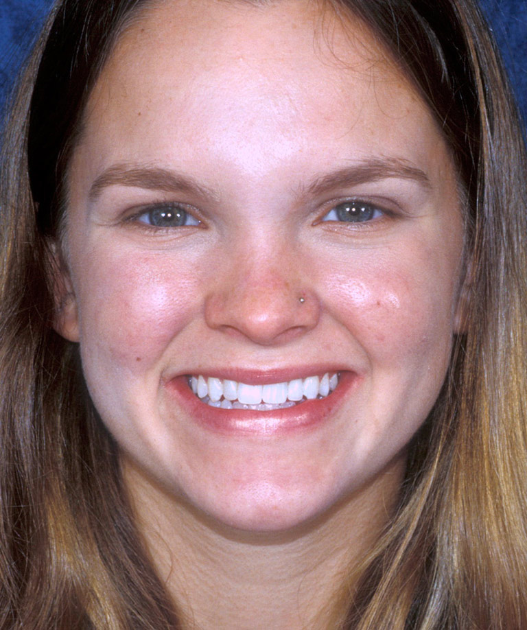 Headshot photo of Lindsay smiling showing smile makeover results from Dr. Brooksher