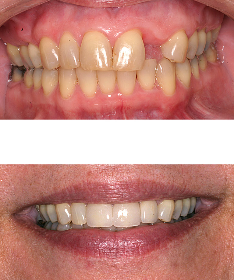 Closeup photos of Liz smiling showing smile makeover results
