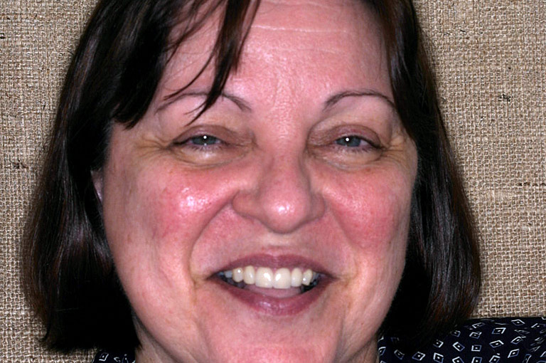 Headshot photo of Liz smiling after smile makeover
