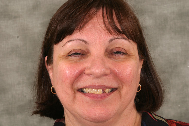 Headshot photo of Liz smiling showing smile with missing tooth and discolored teeth before smile makeover