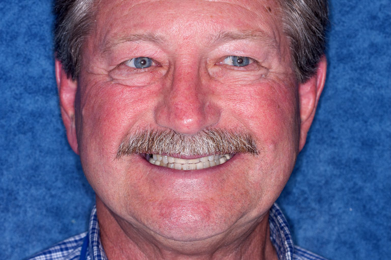 Headshot photo of Nick smiling showing worn discolored teeth before smile makeover