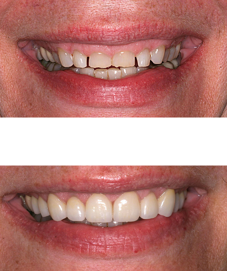 Closeup photos of Robbie smiling showing smile makeover results