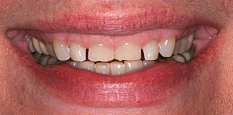 Closeup photo of Robbie smiling showing severely worn discolored teeth before smile makeover