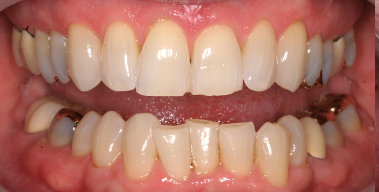 Closeup photo of Suzanne smiling showing severely worn discolored teeth before smile makeover