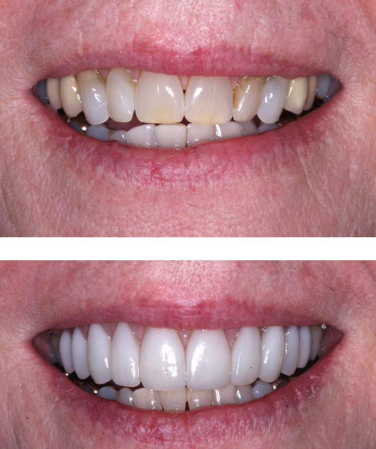 Closeup photos of Tara smiling showing smile makeover results