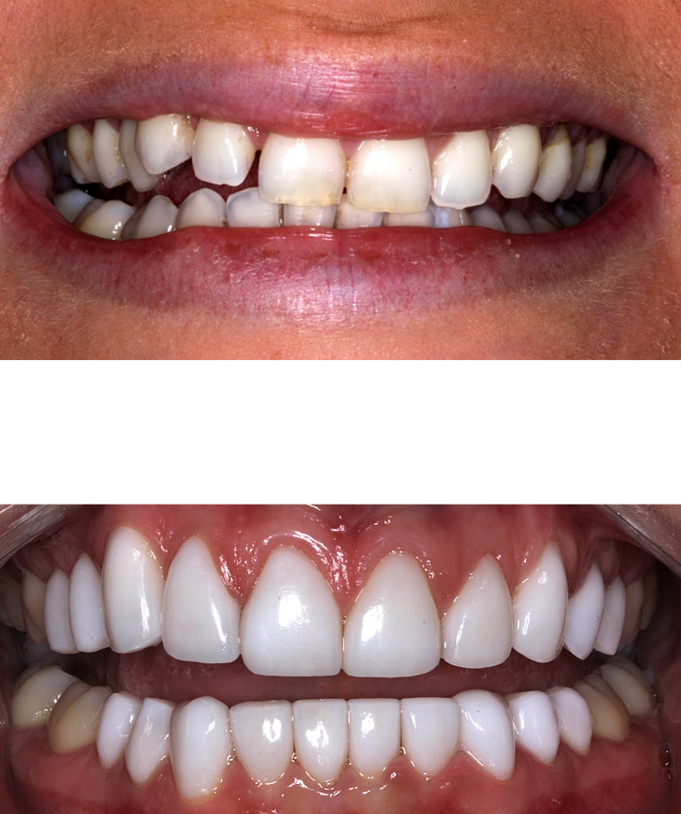 Closeup photos of Toriy smiling showing smile makeover results