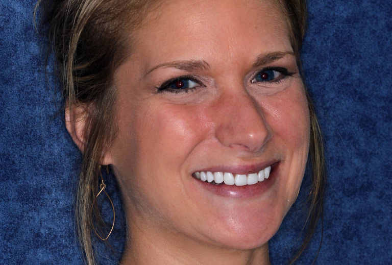 Headshot photo of Tori smiling after smile makeover