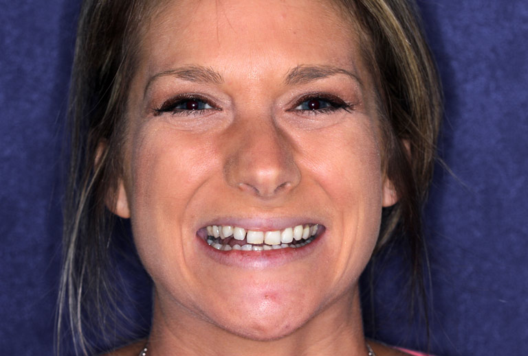 Headshot photo of Tori smiling showing worn discolored teeth before smile makeover