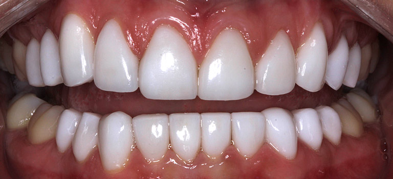 Closeup photo of Tori showing teeth after smile makeover