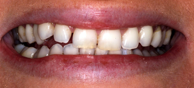 Closeup photo of Tori smiling showing worn cracked discolored teeth before smile makeover