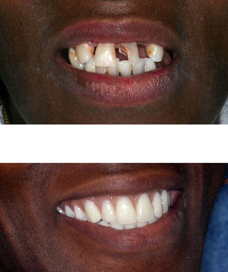 Closeup photos of Tracy smiling showing smile makeover results