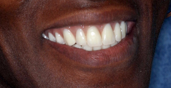 Closeup photo of Tracy showing teeth after smile makeover