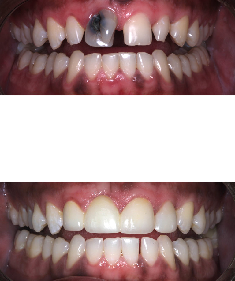 Closeup photos of Travis smiling showing smile makeover results