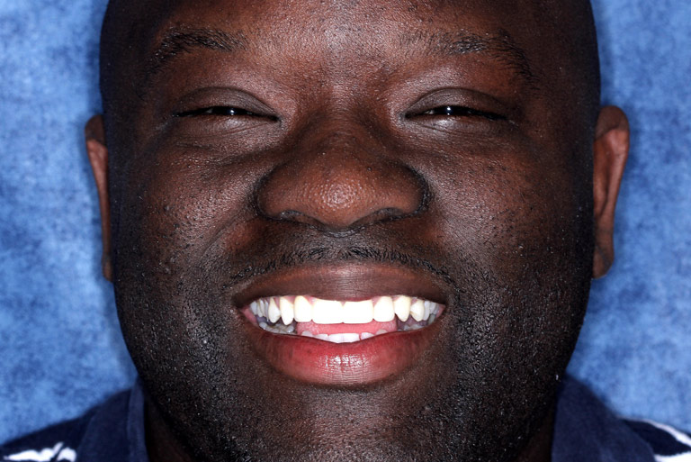 Headshot photo of Travis smiling after smile makeover