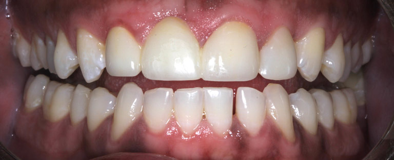 Closeup photo of Travis showing teeth after smile makeover